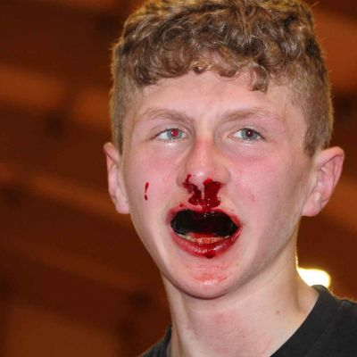 Bloodied But Unbowed that's Jay Snoddon when he faced Poland's Phili Nowak in Switzerland